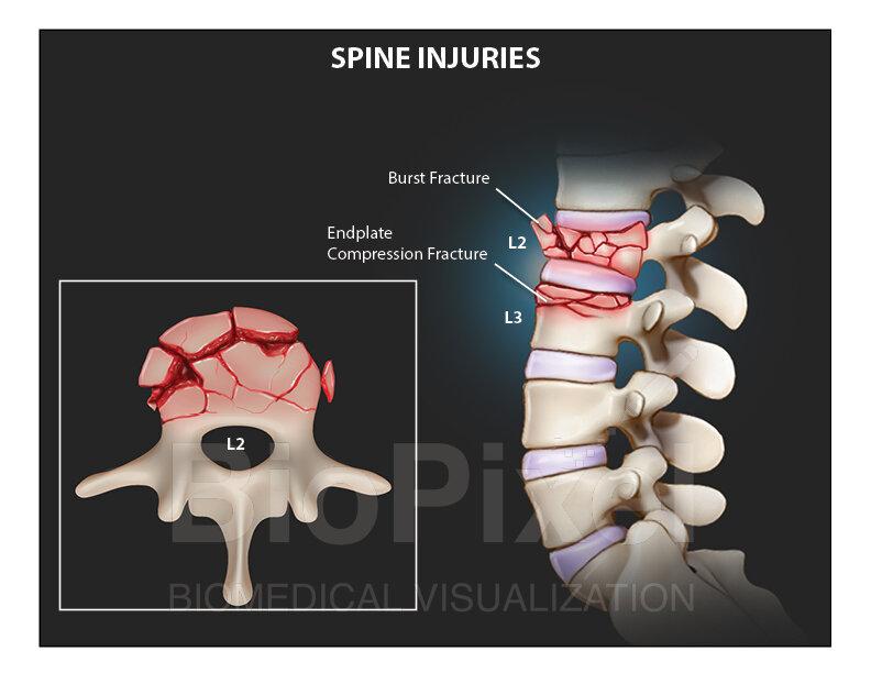 Spine Injury_website.jpg