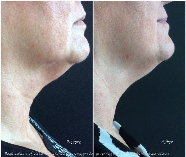 Cosmetic Acupuncture for the neck