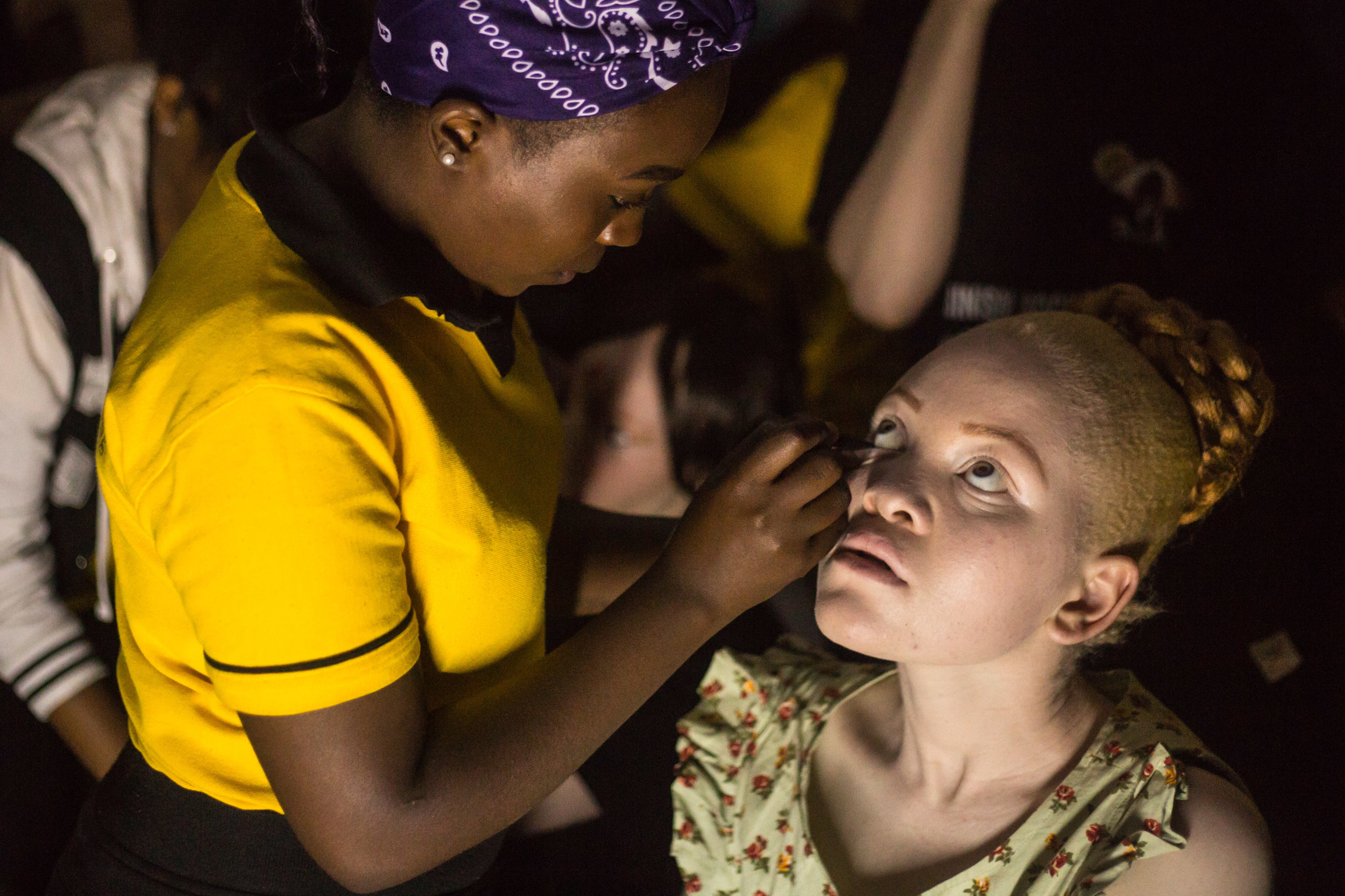 World' first albino beauty pageant defies deadly stigma -
