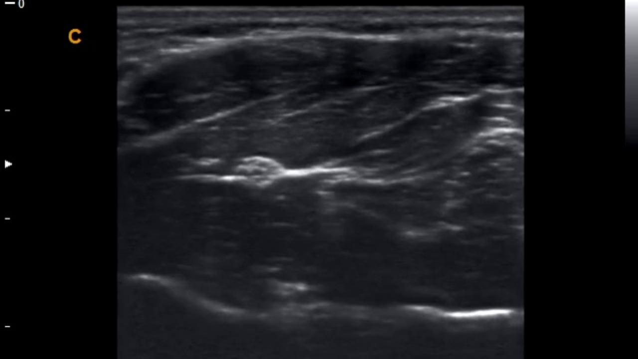 Transverse View of Median Nerve; From  UCSF Nerve Atlas