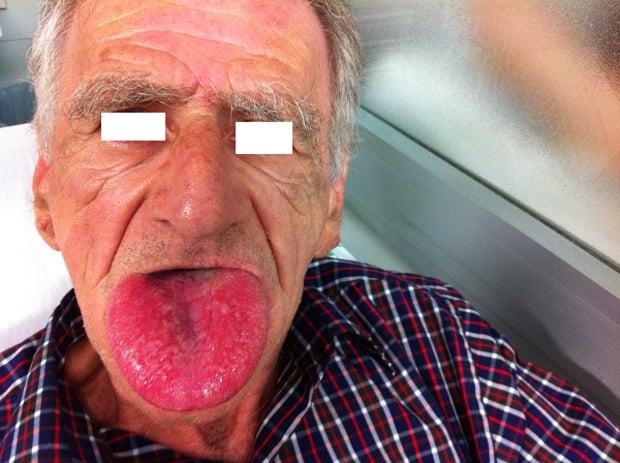 Severe tongue angioedema.  Image Courtesy of  LITFL .