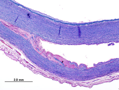 Histopathological image of dissecting aneurysm of thoracic aorta.