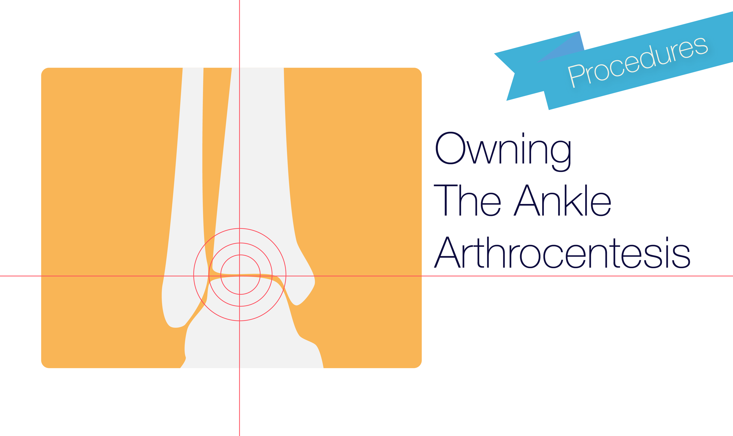 Owning The Ankle Arthrocentesis — NUEM Blog