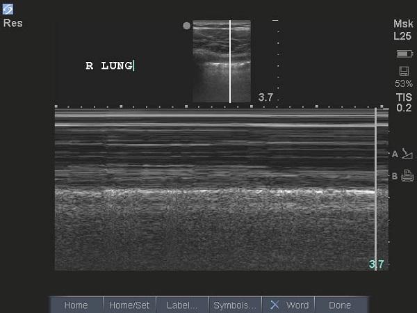 The seashore sign confirms active lung sliding.