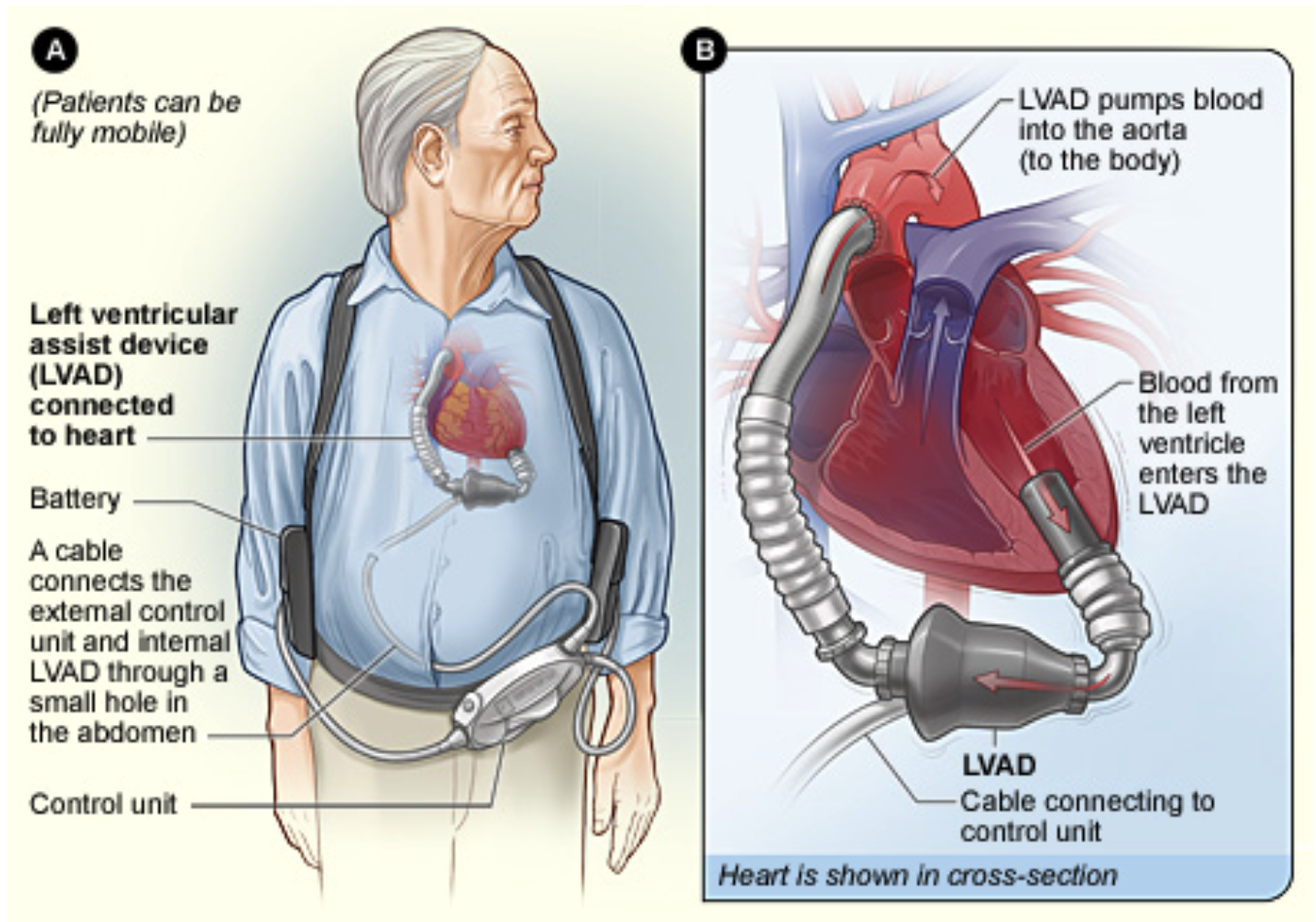 Anatomy of the LVAD