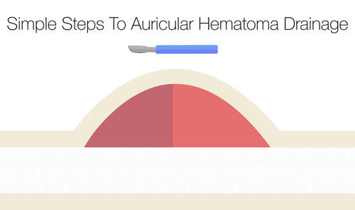 Simple Steps To Auricular Hematoma Drainage — NUEM Blog
