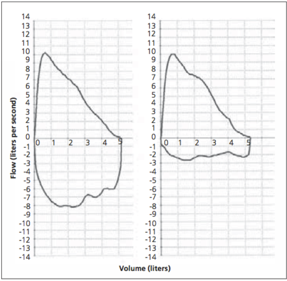 Figure 2 . Flow-volume loop. (Left) Normal expiratory and inspiratory loop. (Right) Normal expiratory loop with flattening of the inspiratory loop, consistent with vocal cord dysfunction. Borrowed from Deckert and Deckert (2010) [6].