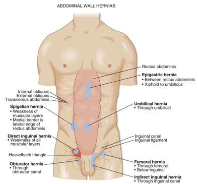Inguinal Hernia Imaging and Reduction — NUEM Blog