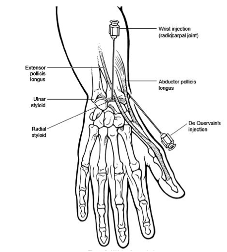 """Arthrocentesis & Injections: Wrist (Radiocarpal)."" RheumaKnowledgy Arthrocentesis Injections Wrist Radiocarpal Comments. N.p., 15 Oct. 2014. Web. 14 May 2017."