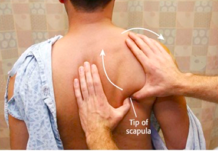 Figure     SEQ Figure \* ARABIC    2      : Scapular Manipulation Technique. Adapted from Horn, A., & Ufberg, J. (2013), Management of Common Dislocations. In: Roberts and Hedges' Clinical Procedures in Emergency Medicine (6th ed.). Philadelphia, PA: Elsevier/Saunders.