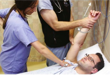 Figure     SEQ Figure \* ARABIC    4      : Milch Technique. Adapted from Horn, A., & Ufberg, J. (2013), Management of Common Dislocations. In Roberts and Hedges' Clinical Procedures in Emergency Medicine (6th ed.). Philadelphia, PA: Elsevier/Saunders.