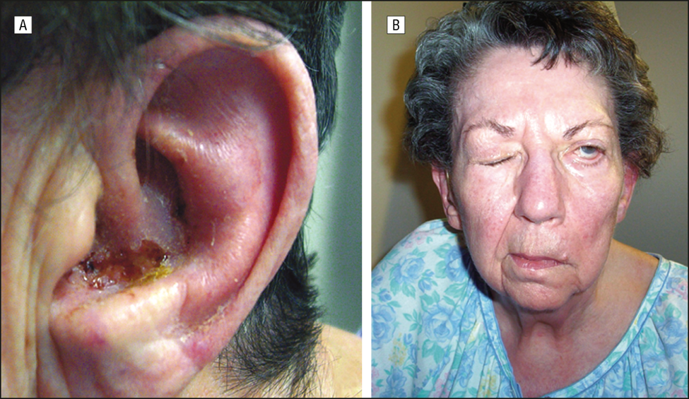 Panel A displaying a crusted lesion in the ear of a patient with RHS. Panel B highlights the CN VII palsy that can be seen in RHS.[9]