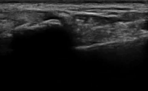 Distal radius fracture (emergencyultrasoundteaching.com)