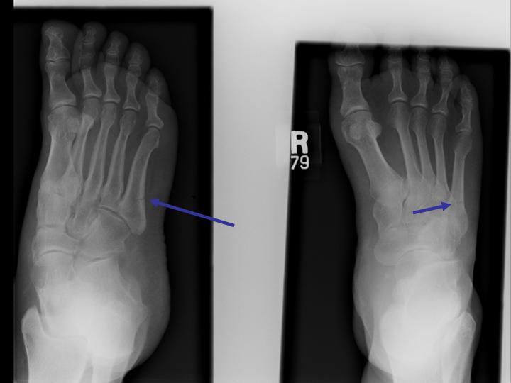 Foot 2.jpg