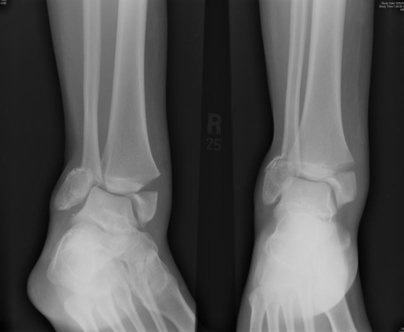ankle3.JPG