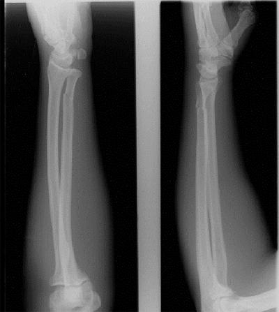 bone3.jpg