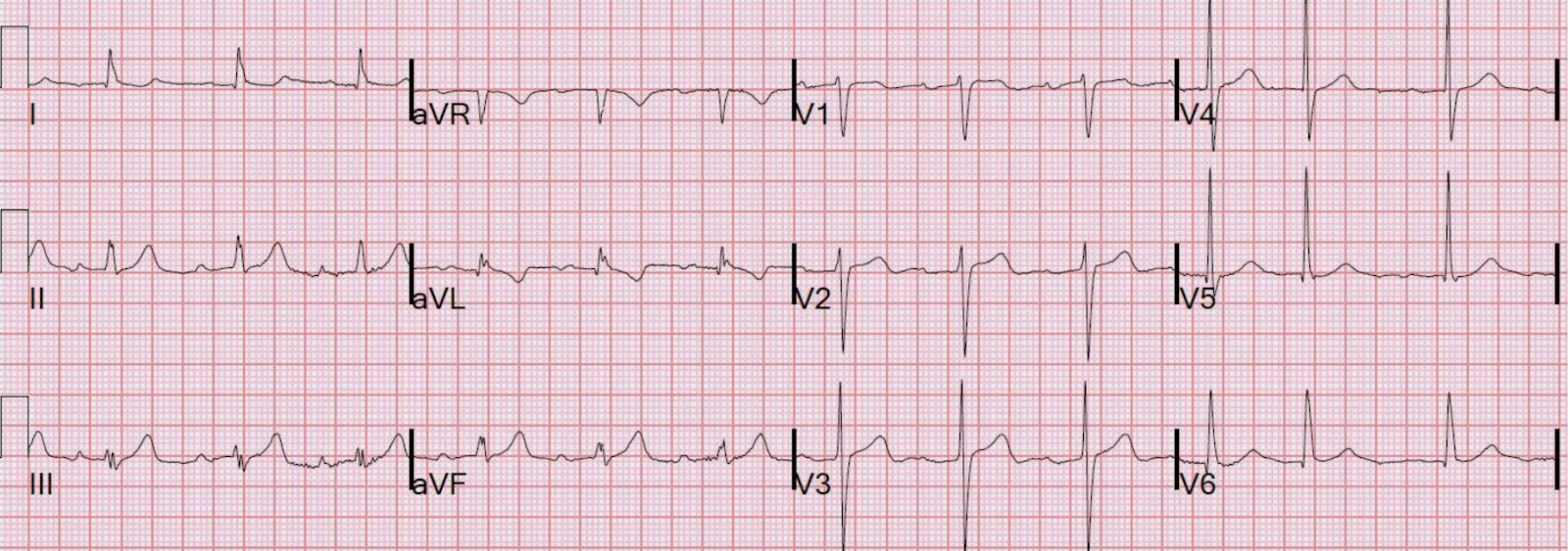 Image from Stephen Smith, MD. http://hqmeded-ecg.blogspot.com/2011/02/inferior-hyperacute-t-waves-clue-is-t.html