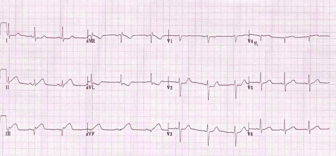 Image from Edward Burns, MD. https://lifeinthefastlane.com/ecg-library/basics/inferior-stemi/