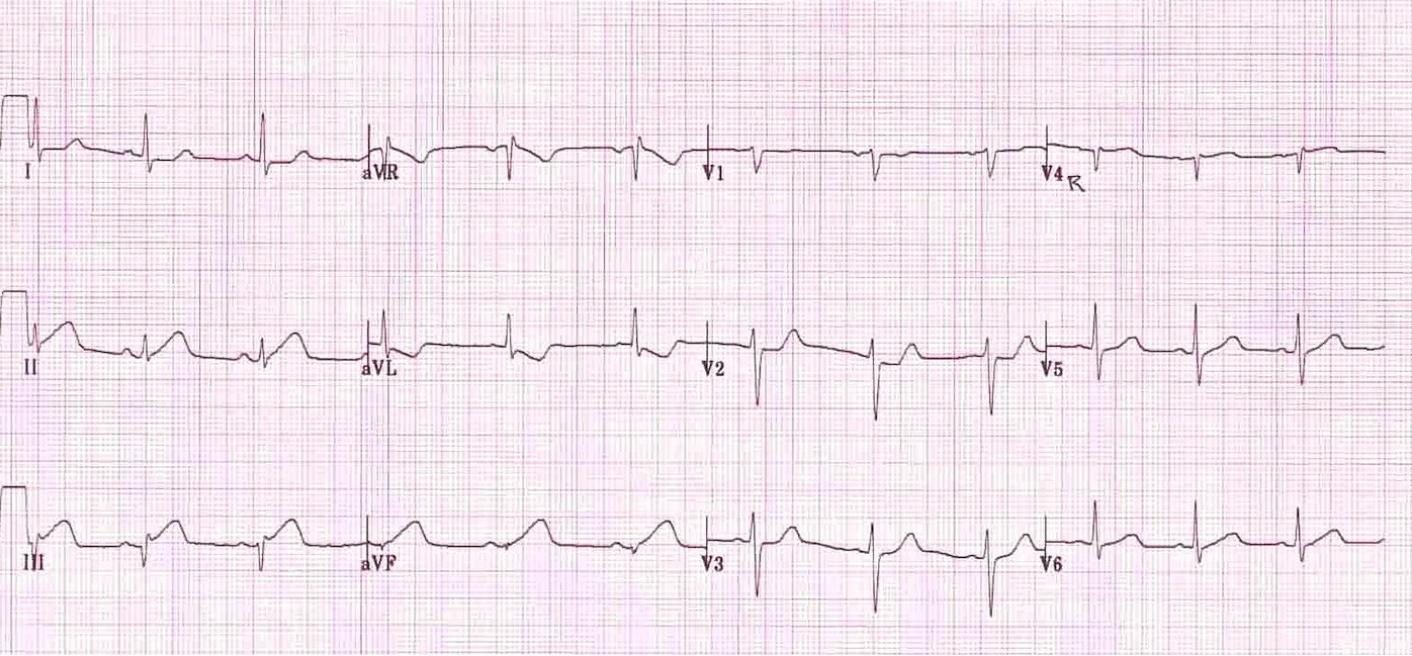 Image from Edward Burns, MD. https://lifeinthefastlane.com/ecg-library/basics/inferior-stemi/
