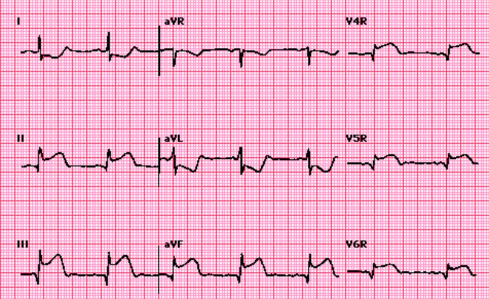 Image from Ary Goldberger, MD. UpToDate: Electrocardiogram in the diagnosis of myocardial ischemia and infarction
