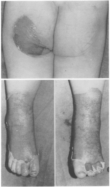 "Figure 2:  Forced immersion burn of buttocks with bilateral, symmetric leg involvement in a ""stocking"" pattern. [7]"