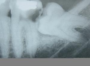 Wisdom tooth causing damage to the neighboring tooth.