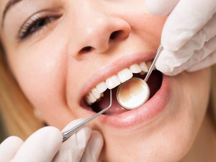 teeth cleaning.jpg