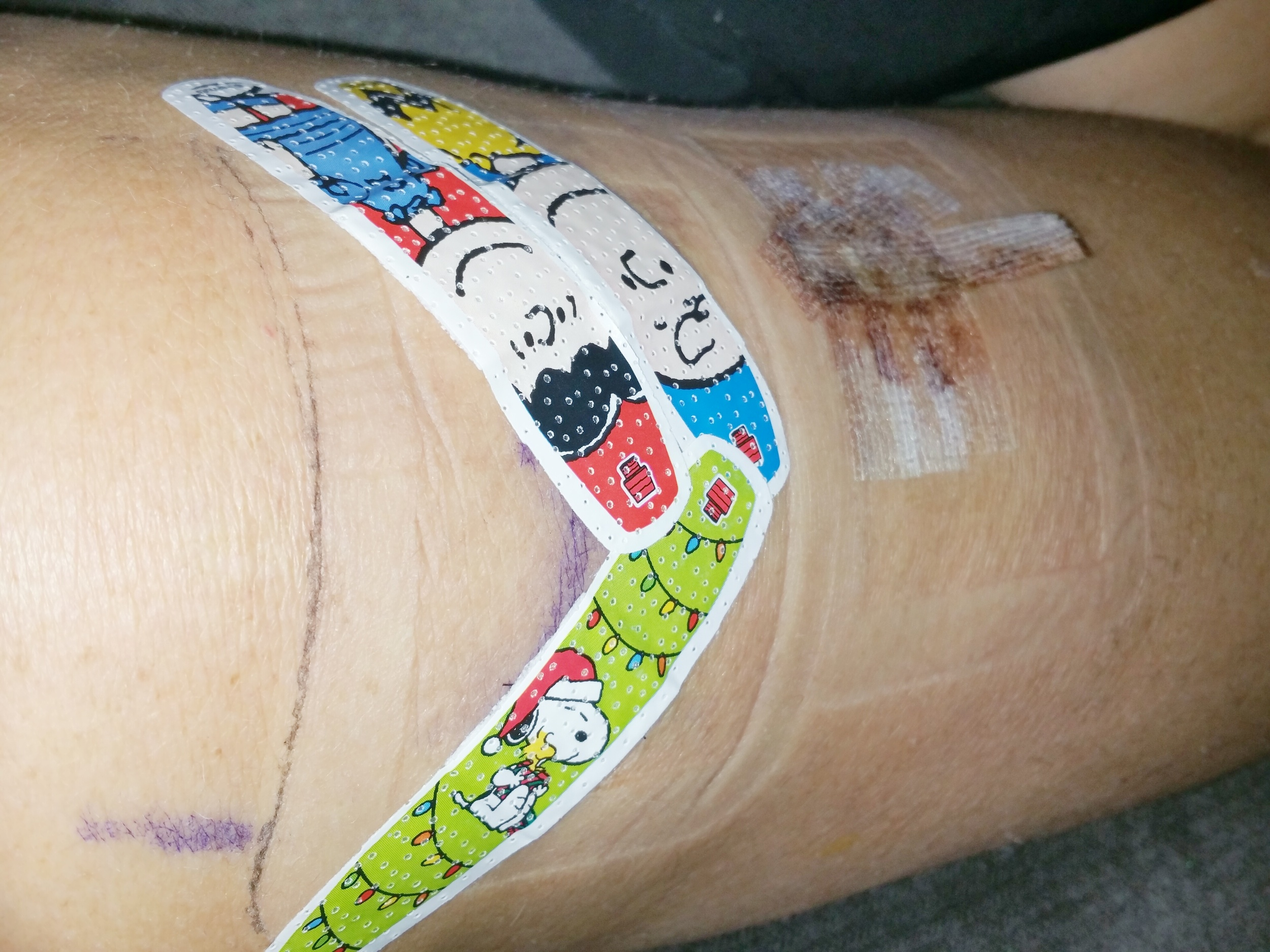 Because regular band-aids are boring #snoopy