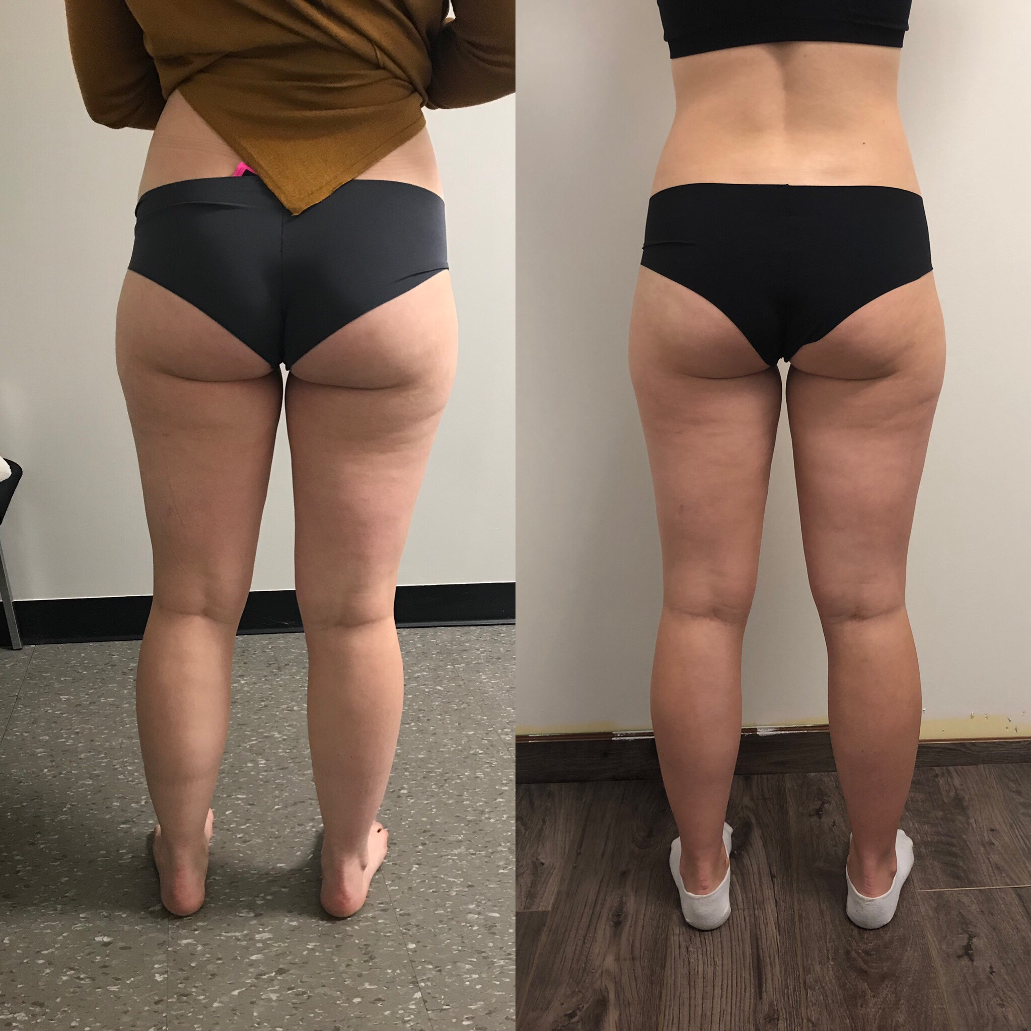 After 24 treaTmentS