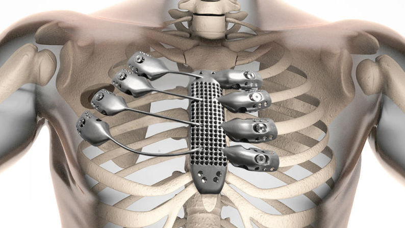 The implant was custom-designed using CT scans of a cancer patient's chest. The man lost his sternum and four ribs during surgery to remove a tumor.