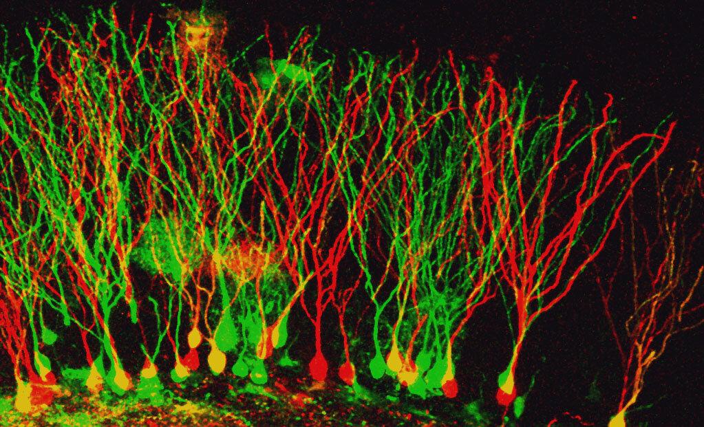 Image of mouse brain cells by Shivaprasad H. Sathyanarayana