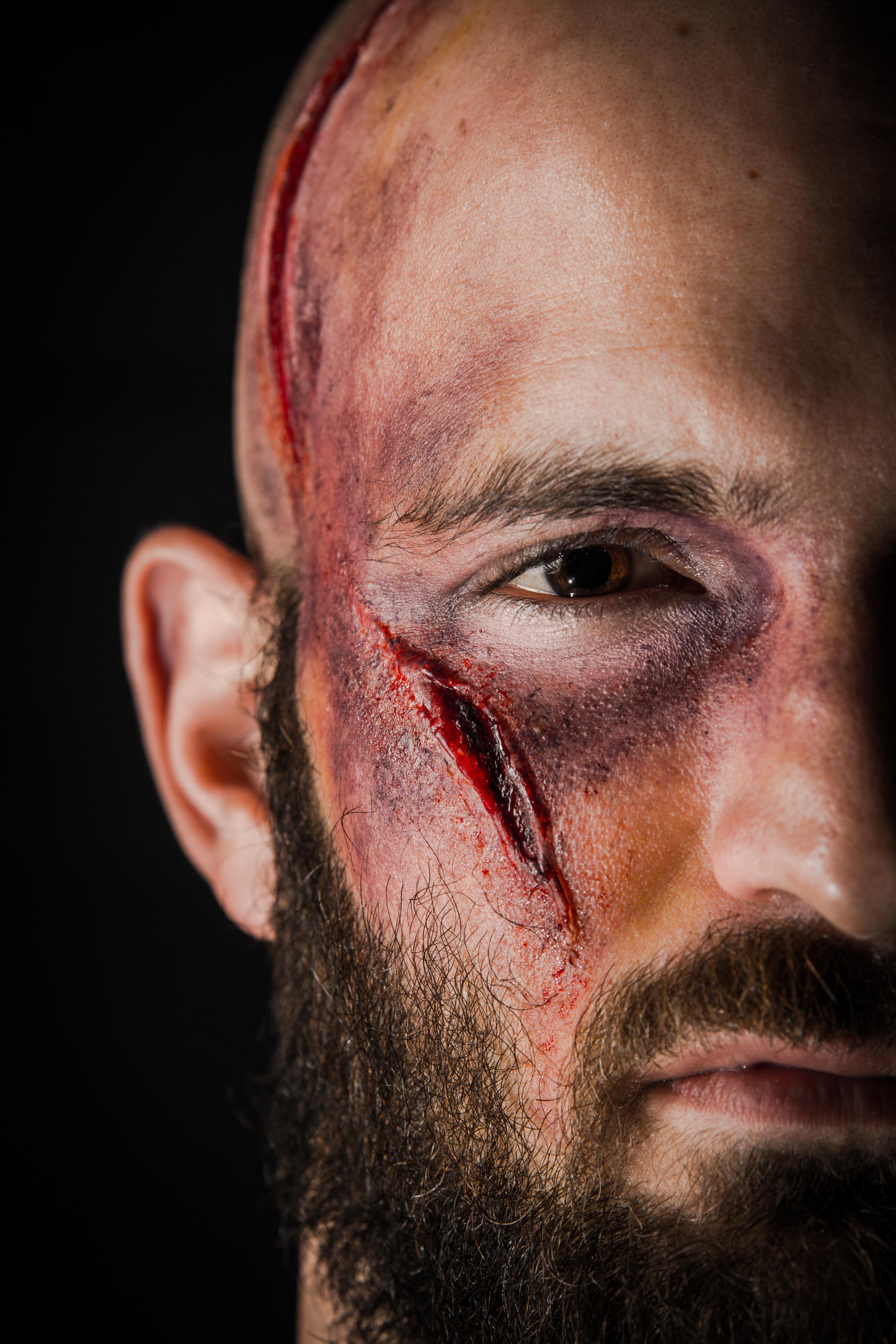 injury16.jpg