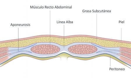 rectos abdominales.jpg