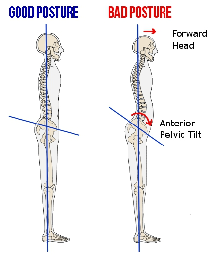Excessive forward head and shoulder position, along with an excessive anterior pelvic tilt have been associated with increased risk for spine and shoulder pain