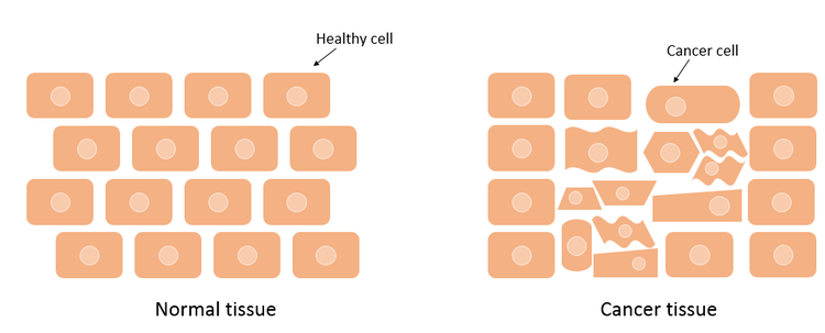 Comparison between healthy tissue and cancerous tissue