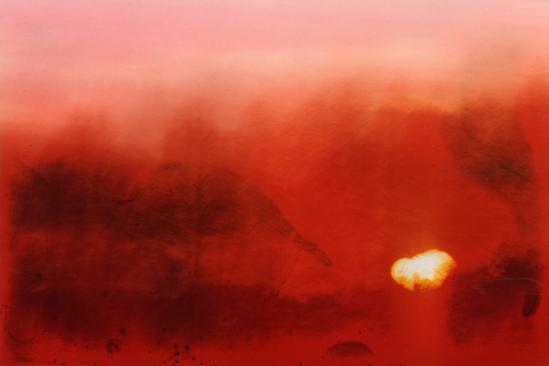 Sunburn 11, 2006