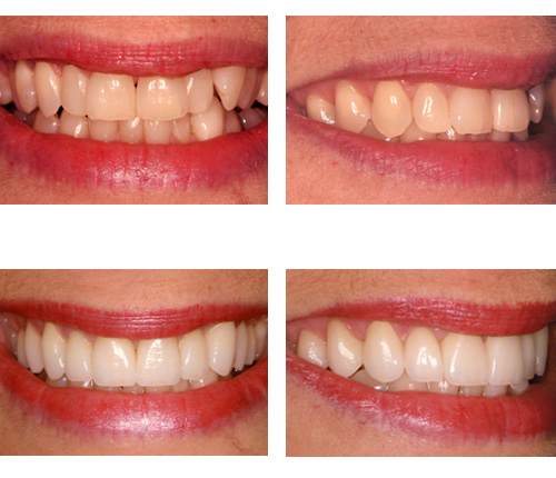 Porcelain Crowns/Veneers