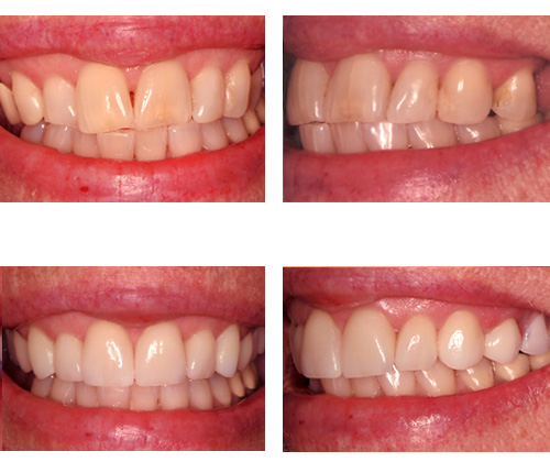 Porcelain Crowns and a Removable Partial Denture