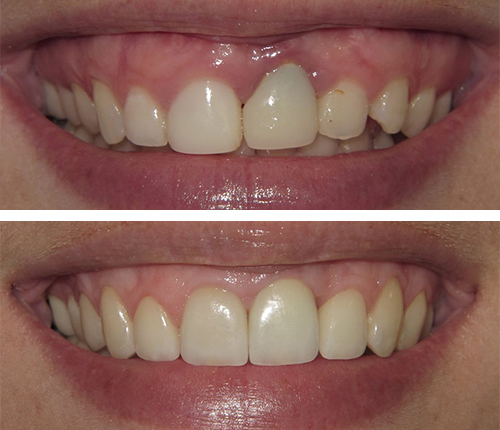 Implant & Porcelain Crowns/Veneers