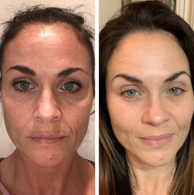 """As women we spend a fortune on facials, botox, and treatments, so why not add something to our regime that costs less than all of those, but delivers results? This is what 5 months on The Gel looks like!""   Image:    NewULife"
