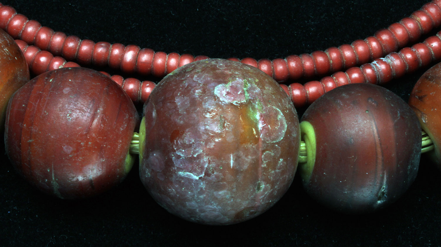 Large and small Cornaline d' Aleppo glass beads; the center large bead has been damaged, showing as circular spall marks. These Venetian beads are from the African trade. Note yellow core of larger CdAs. Sizes range from 0.4 to 2.3 cm diameters. RKL