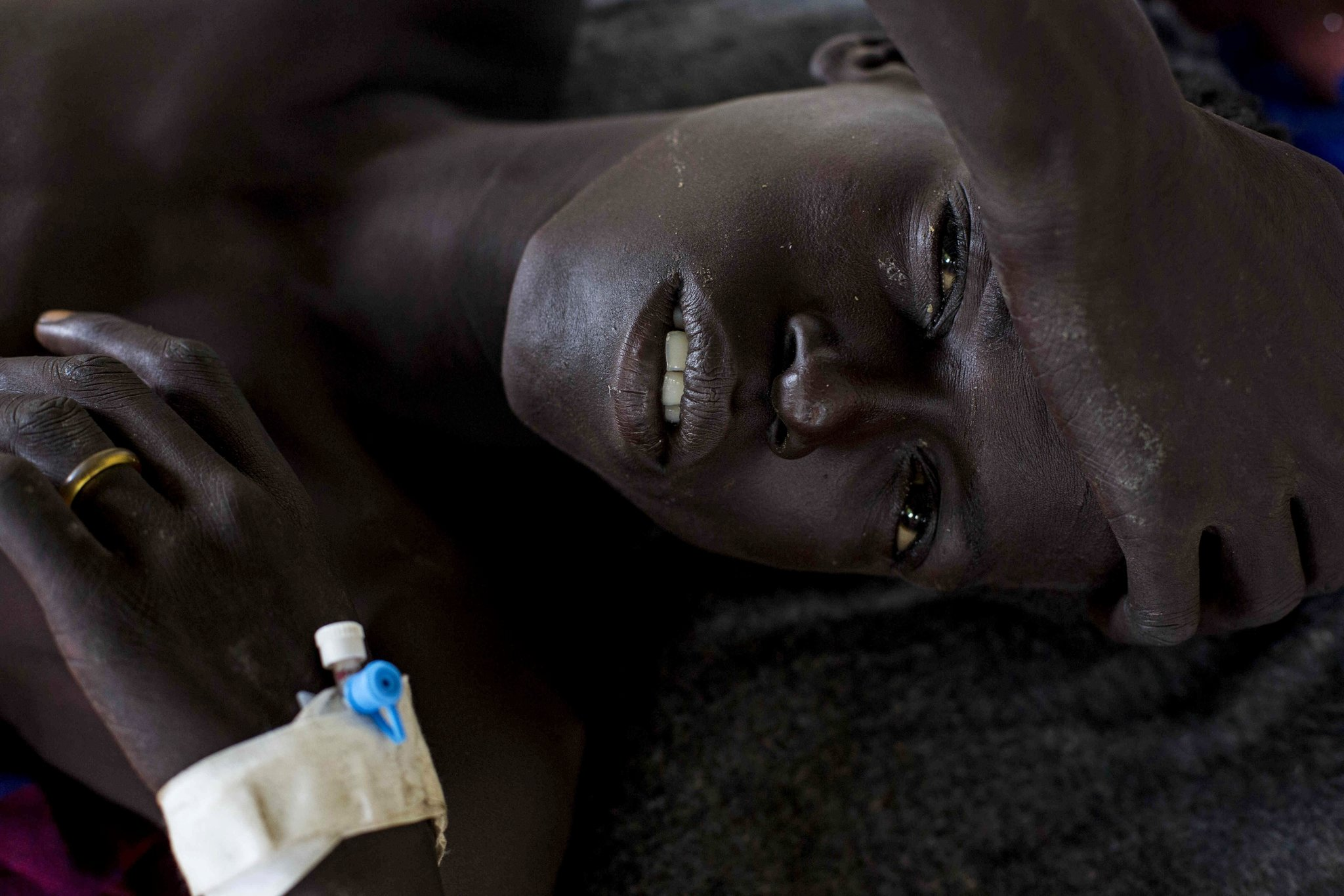Man wounded in Jonglei State, South Sudan. Photo, Camille Lepage.
