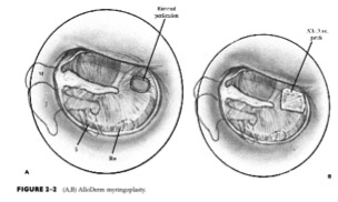 Figure 2.2: Alloderm myringoplasty