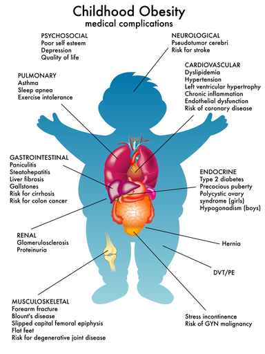 childhood-obesity-medical-complications.jpg