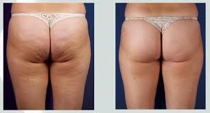 cavitation & Radio frequency -lipo laser