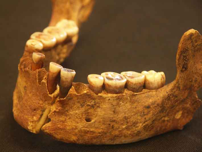 The Red Lady of El Mirón. Died: about 18,700 years ago. Found in her teeth: mushroom spores.