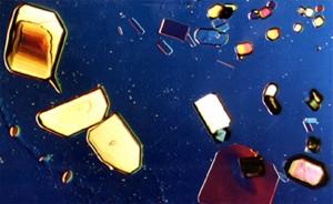 Microscopic view of Malic acid thanks to Sondra Barrett