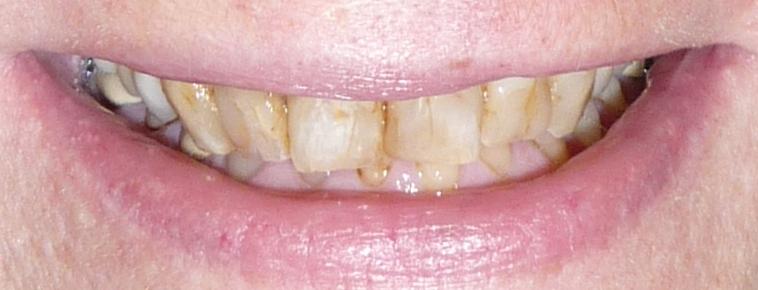 best mentor dentist.jpg