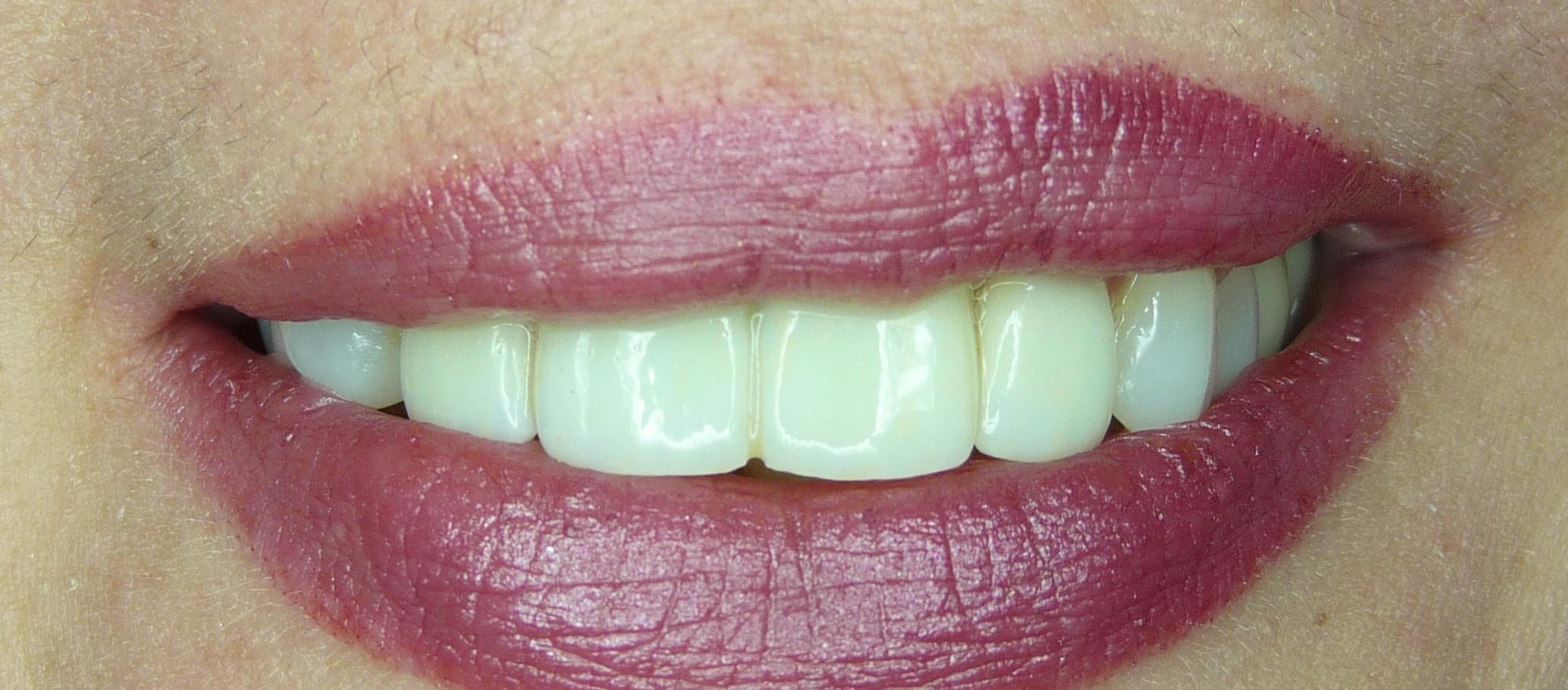 greenfield crowns painesville dentist.jpg