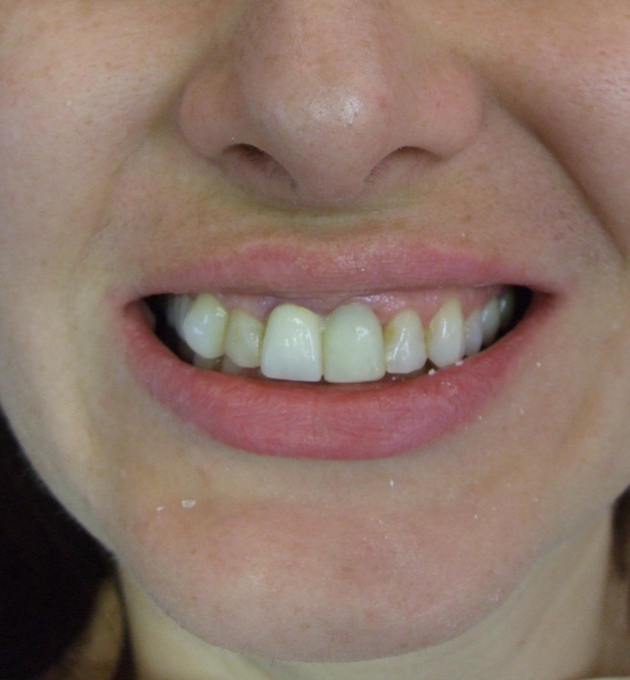greenfield dentist near me mentor.jpg